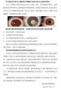 艾芬医生最新回应:爱尔眼科提供的三张照片我都没见过