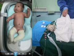 女子诉称其刚出生50天的女儿因麻醉过量